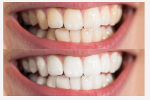 salon cosmetic teeth whitening