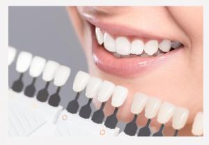 teeth whitening shades
